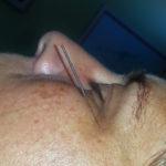 Migraine acupunctuur